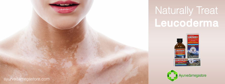 WHAT IS LEUCODERMA AND HOW AYURVEDA CAN CURE IT